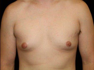 Gynecomastia Gallery - Patient 39348744 - Image 1