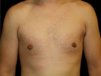 Gynecomastia Gallery - Patient 39348744 - Image 2