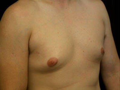 Gynecomastia Gallery - Patient 39348744 - Image 3
