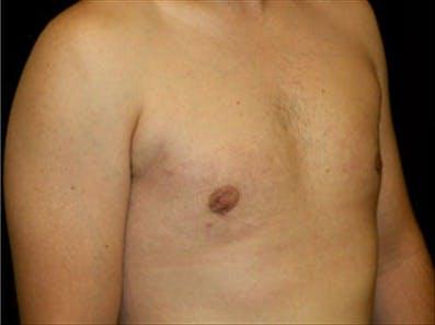 Gynecomastia Gallery - Patient 39348744 - Image 4