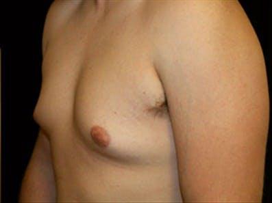 Gynecomastia Gallery - Patient 39348744 - Image 5