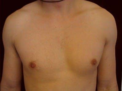 Gynecomastia Gallery - Patient 39348826 - Image 1
