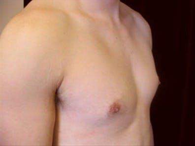 Gynecomastia Gallery - Patient 39348826 - Image 3