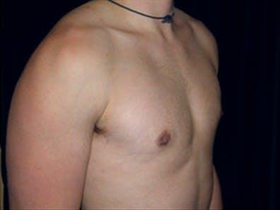 Gynecomastia Gallery - Patient 39348826 - Image 4