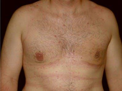 Gynecomastia Gallery - Patient 39348916 - Image 2