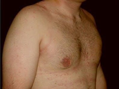 Gynecomastia Gallery - Patient 39348916 - Image 4