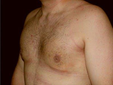 Gynecomastia Gallery - Patient 39348916 - Image 6
