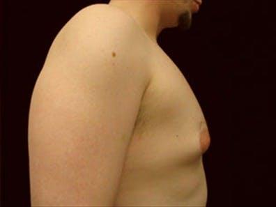 Gynecomastia Gallery - Patient 39349006 - Image 3