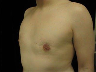 Gynecomastia Gallery - Patient 39349006 - Image 6