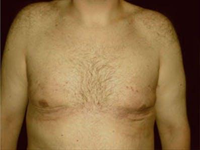 Gynecomastia Gallery - Patient 39349100 - Image 2