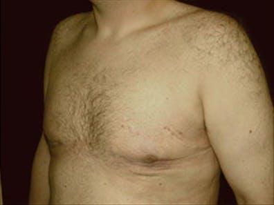 Gynecomastia Gallery - Patient 39349100 - Image 6
