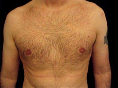 Gynecomastia Gallery - Patient 39349205 - Image 2