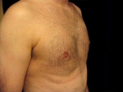 Gynecomastia Gallery - Patient 39349205 - Image 4