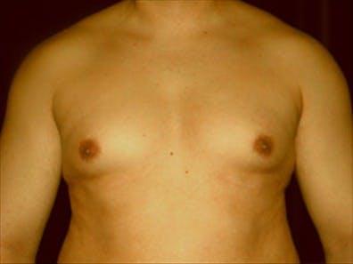 Gynecomastia Gallery - Patient 39349307 - Image 1