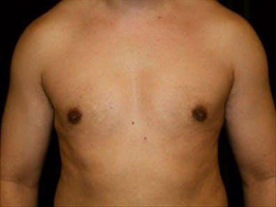 Gynecomastia Gallery - Patient 39349307 - Image 2