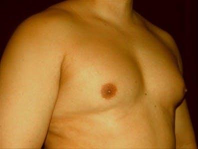 Gynecomastia Gallery - Patient 39349307 - Image 3