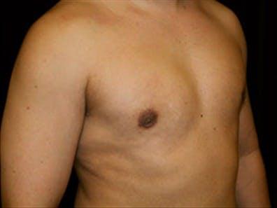 Gynecomastia Gallery - Patient 39349307 - Image 4