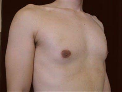 Gynecomastia Gallery - Patient 39349384 - Image 1