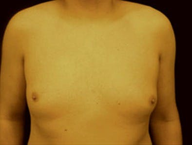 Gynecomastia Gallery - Patient 39349453 - Image 1