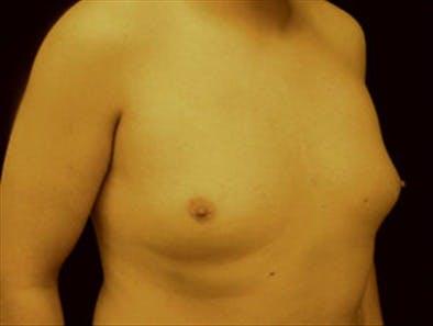 Gynecomastia Gallery - Patient 39349453 - Image 3