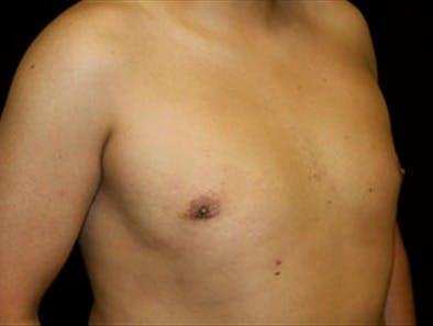 Gynecomastia Gallery - Patient 39349453 - Image 4