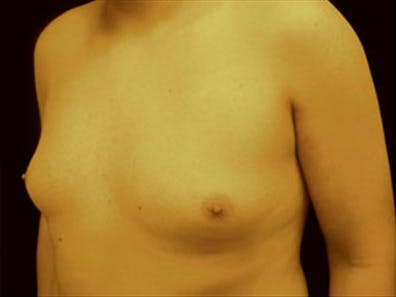Gynecomastia Gallery - Patient 39349453 - Image 5
