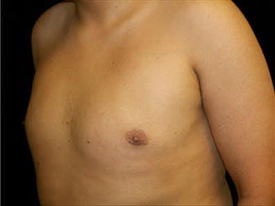 Gynecomastia Gallery - Patient 39349453 - Image 6