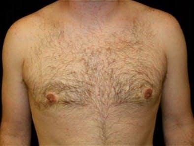 Gynecomastia Gallery - Patient 39349564 - Image 2