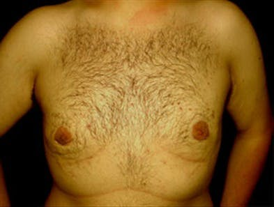 Gynecomastia Gallery - Patient 39349661 - Image 2