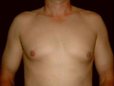 Gynecomastia Gallery - Patient 39349746 - Image 1