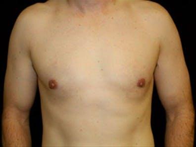 Gynecomastia Gallery - Patient 39349746 - Image 2
