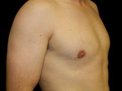 Gynecomastia Gallery - Patient 39349746 - Image 4