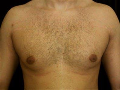 Gynecomastia Gallery - Patient 39349871 - Image 1