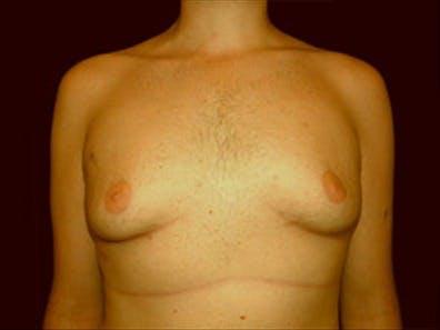 Gynecomastia Gallery - Patient 39349972 - Image 1