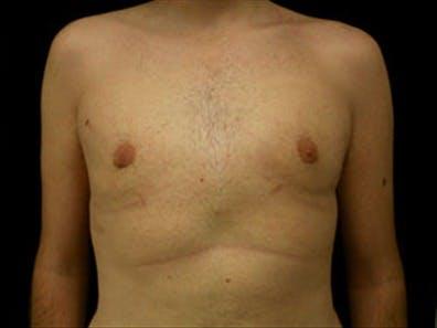 Gynecomastia Gallery - Patient 39349972 - Image 2
