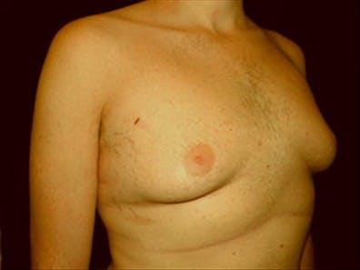 Gynecomastia Gallery - Patient 39349972 - Image 3