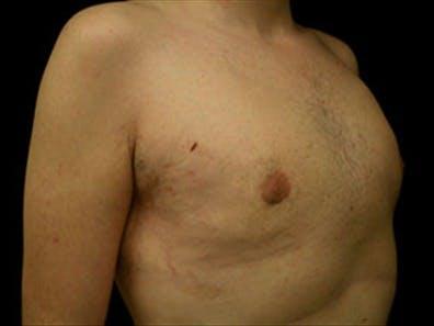 Gynecomastia Gallery - Patient 39349972 - Image 4