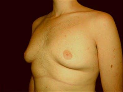 Gynecomastia Gallery - Patient 39349972 - Image 5