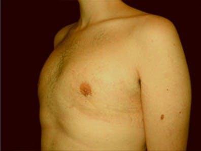 Gynecomastia Gallery - Patient 39349972 - Image 6