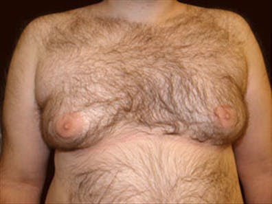 Gynecomastia Gallery - Patient 39350095 - Image 1