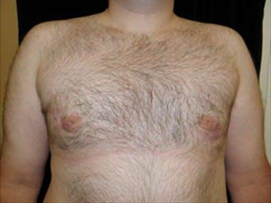 Gynecomastia Gallery - Patient 39350095 - Image 2
