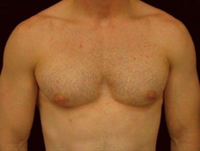 Gynecomastia Gallery - Patient 39350098 - Image 1