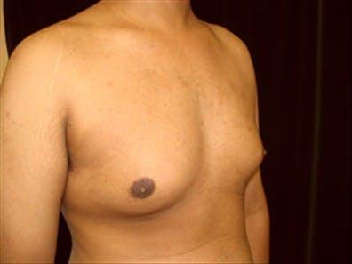 Gynecomastia Gallery - Patient 39350102 - Image 3