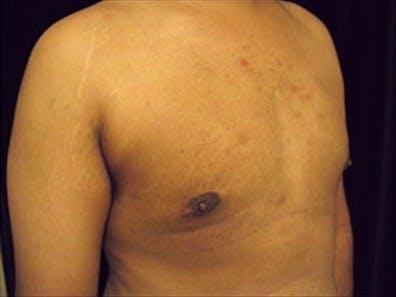 Gynecomastia Gallery - Patient 39350102 - Image 4