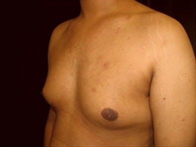 Gynecomastia Gallery - Patient 39350102 - Image 5