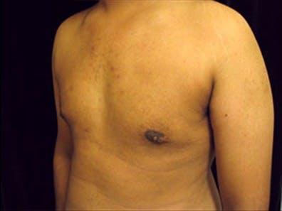 Gynecomastia Gallery - Patient 39350102 - Image 6