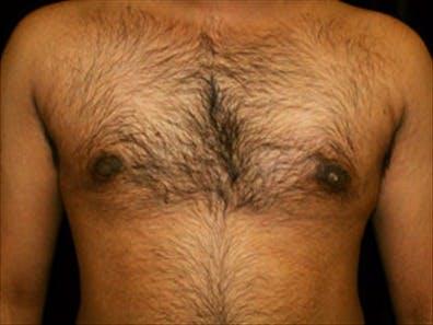 Gynecomastia Gallery - Patient 39350111 - Image 2