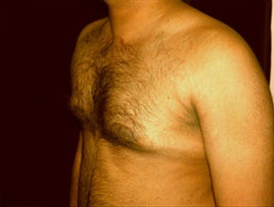 Gynecomastia Gallery - Patient 39350111 - Image 5