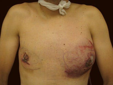 Gynecomastia Gallery - Patient 39350116 - Image 1