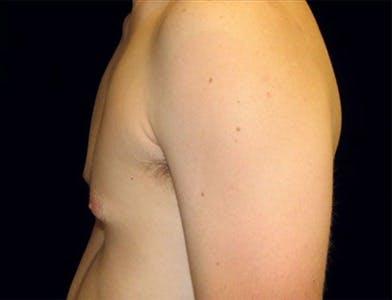 Gynecomastia Gallery - Patient 39350118 - Image 1